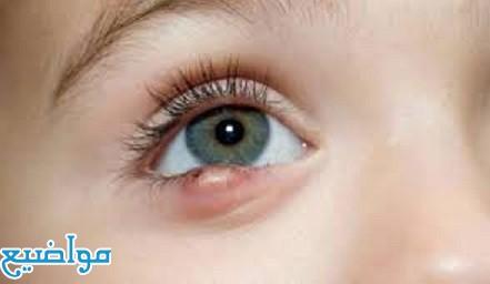 تفسير حلم رؤية العين في المنام لابن سيرين