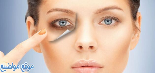 خلطات لعلاج الهالات السوداء تحت وحول العين