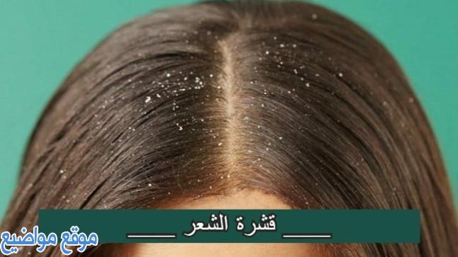 طرق علاج قشرة الشعر الدهنية نهائيا
