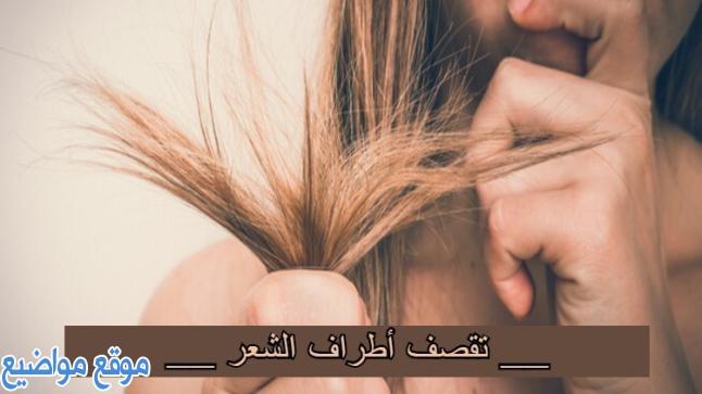طريقة علاج تقصف الشعر الشديد من الأمام والأطراف