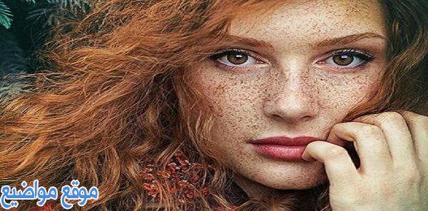 وصفات لإزالة النمش والكلف من الوجه في اسبوع