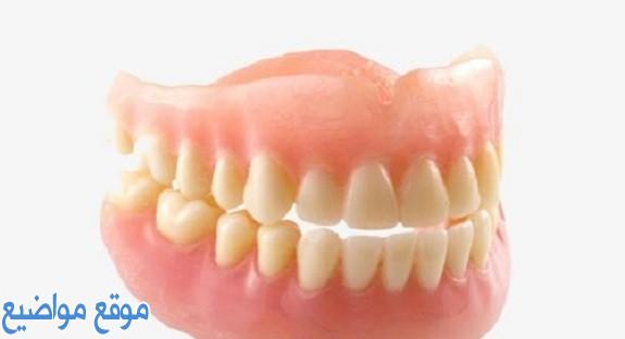 أفضل تركيبات الأسنان الثابتة والمتحركة بالتفاصيل