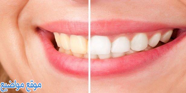 طرق تبييض الأسنان بالفحم طبيعيا في المنزل