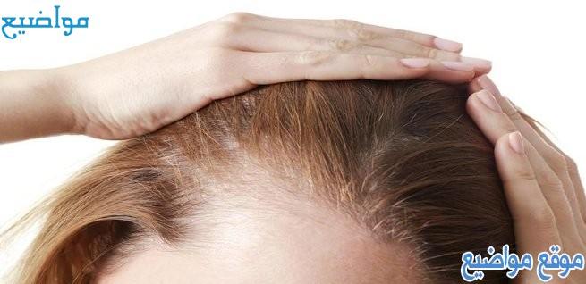 طرق علاج الثعلبة في الشعر للرجال والنساء والأطفال