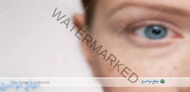 علاج النمش في الوجه بالاعشاب وطبيا بالليزر