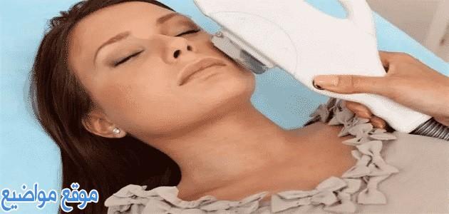 علاج النمش في الوجه طبيًا وطبيعيًا