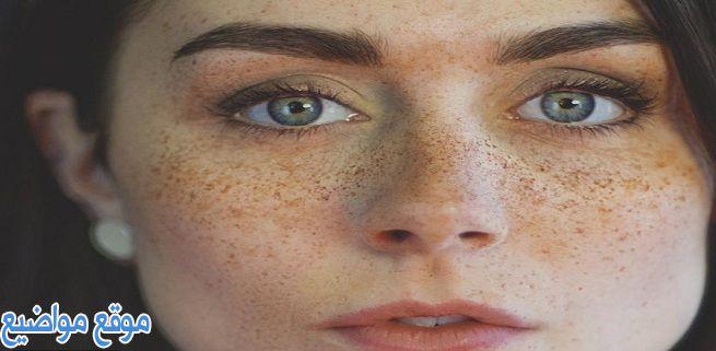 علاج النمش في الوجه طبيعياً وأسباب ظهورة