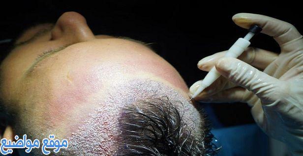 كيف تتم زراعة الشعر بالأسعار والاضرار